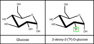 glucose en de radionuclide [18F]FGD